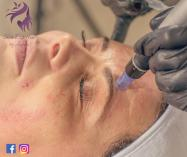 Micro-needling package Kraaifontein Tattoo Removal 4 _small